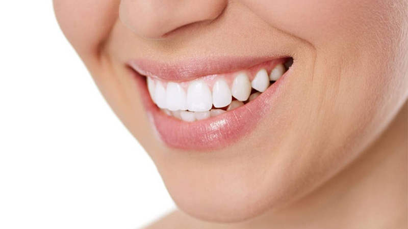 Oil Pulling as a Teeth Whitening Technique